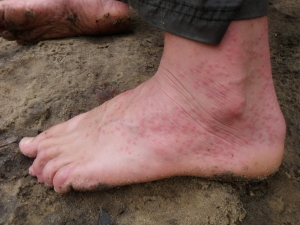 Bites from tiny flies manifested by a rash around our ankles